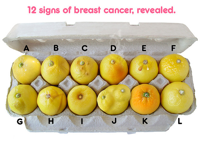 12 signs of breast cancer